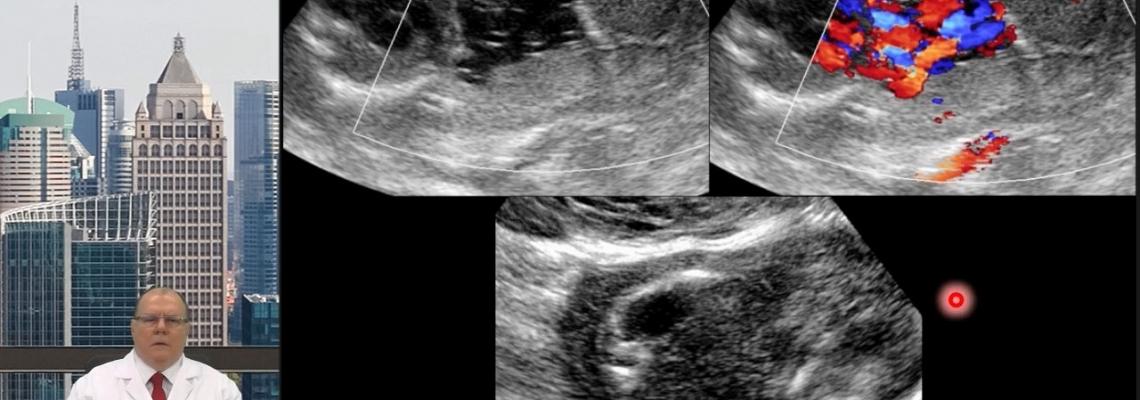 Vídeo Blog - Ultrassonografia do �mnio e da Cavidade Amniótica