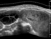 Curso Online Ultrassonografia da Doença Trofoblástica Gestacional