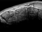 Curso Online Ultrassonografia das Hérnias Intestinais
